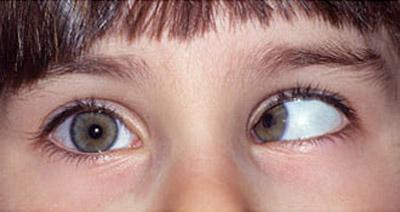 علل و درمان انحراف چشم (لوچی یا استرابیسم)