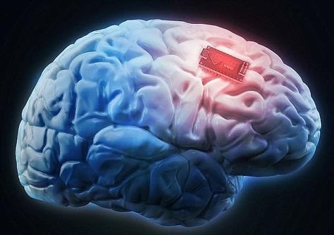 طراحی و تولید ایلان ماسک برای درمان بیماریهای مغزی