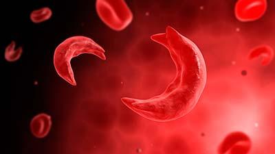 anemia-sick-pregnancy22.jpg