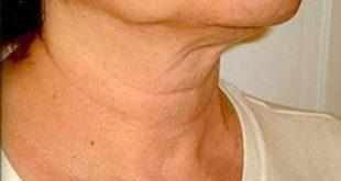 پیشگیری از چروک پوست گردن با این روش ها