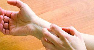 این نشانهها شما را از عفونت پوستتان باخبر میکنند