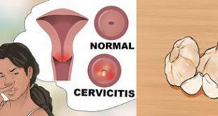 درمان عفونت واژن با استفاده از سیر