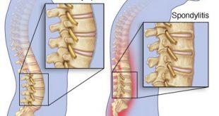 علل ، علائم و درمان اسپوندیلوز ( آرتروز ستون فقرات)