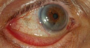 علل ، علائم و درمان بیماری اکتروپیون