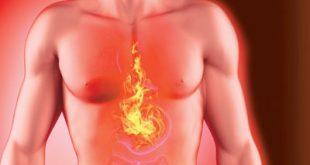 چه غذاها و نوشیدنی هایی برای سوزش سر دل مناسب است؟