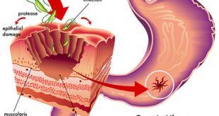 علل، علائم و درمان سرطان معده