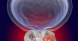 اقداماتی برای کاهش خطر سرطان پروستات