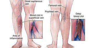 علل ، علایم و درمان ترومبوفلبیت