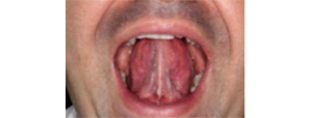 6 ورزش دهان برای جلوگیری از خر و پف