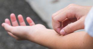 توصیههایی برای کنترل خارش پوست