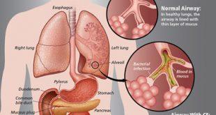 علل، علائم و درمان فیبروز ریوی
