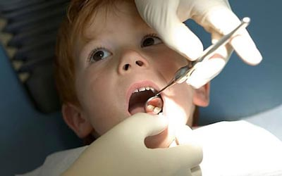 tooth-decay-children22.jpg
