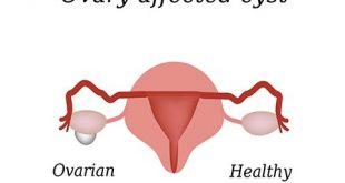 انواع کیست تخمدان و روش های درمان آن