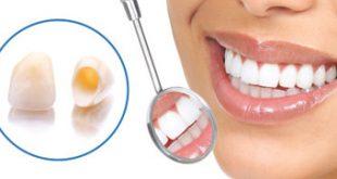 همه چیز درباره روکش دندان