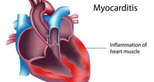 علائم ,علل و درمان التهاب عضله قلب یا میوکاردیت
