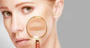 تشخیص بیماری از روی صورت