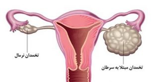 نشانههای ظریف سرطان تخمدان که شاید نادیده گرفته شوند