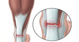 ورزشهای مناسب برای درمان پارگی تاندون آشیل