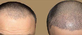 کاشت مو به روش SUT + چند نکته مهم قبل از کاشت مو
