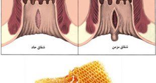 درمان شقاق مقعدی با عسل و چند راهکار خانگی دیگر