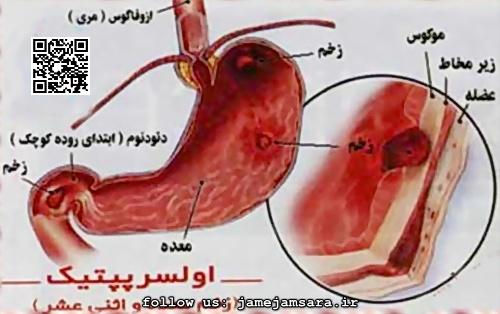 Photo of علائم هایی در بدن که نشانه سرطان معده است+راه درمان این بیماری در طب سنتی