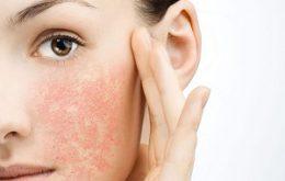 درمان فوری خشکی پوست