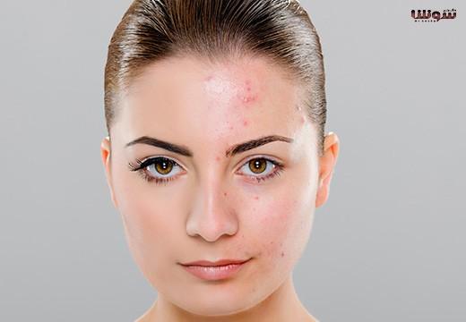 درمان-جوش-صورت-با-گلاب-۱-۵۲۰x360