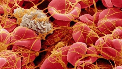 علائم ، علل و درمان بیماری ترومبوسیتوپنی