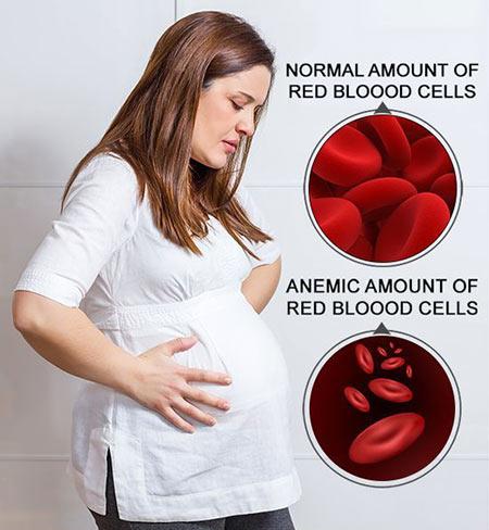 anemia-pregnancy-01.jpg