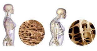 تمام نکات رژیمی برای جلوگیری از ابتلا به پوکی استخوان