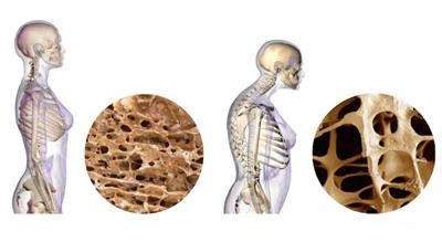 prevent-osteoporosis2-2.jpg