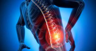 کاهش درد سیاتیک در 7 حرکت