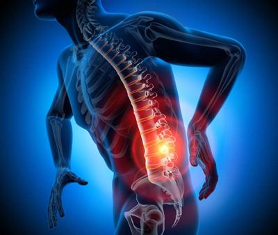sciatic-pain1-1.jpg