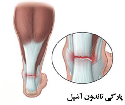 suitable-tendonachilles2-2.jpg