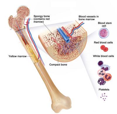 علائم و راههای درمان سرطان استخوان